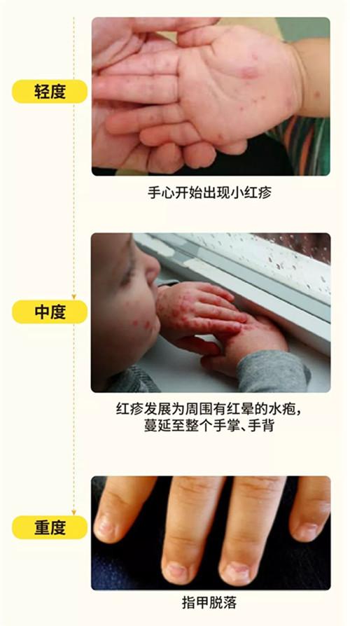 10-5.webp_副本.jpg